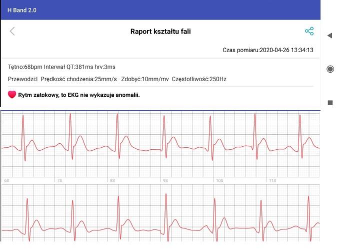 Opaska z zapisem EKG