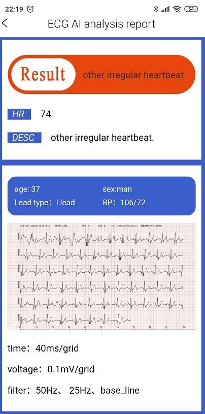 Pomiar EKG w domu z analizą zegarek