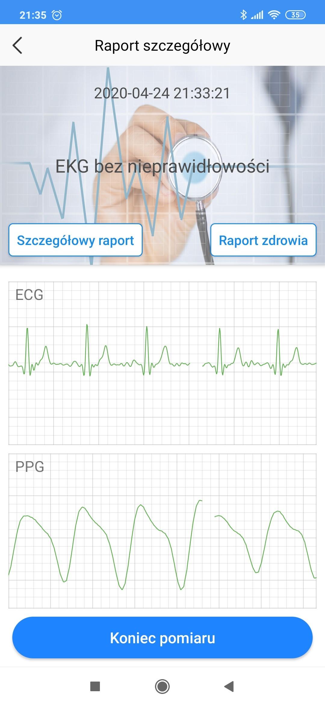 Zapis krzywej EKG w zegarku