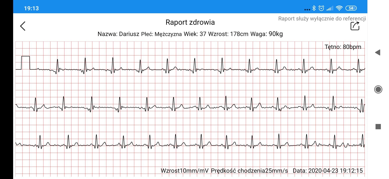 Zegarek z pomiarem EKG elektrokardiogram
