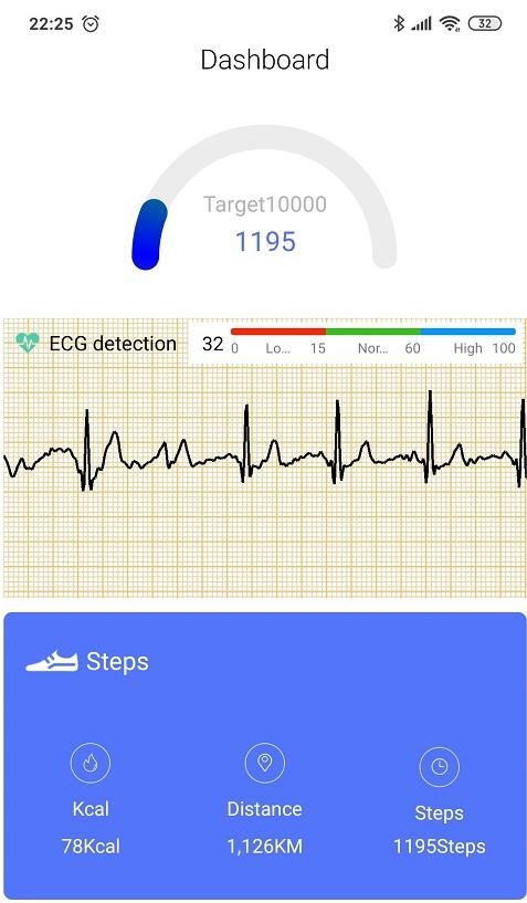 Zegare krzywa EKG detekcja zapis